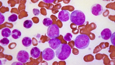 1994 Stacy Howard  Blast crisis of chronic myelogenous leukemia (CML).  Peripheral blood smear revealing the histopathologic features indicative of a  blast crisis in the case of chronic myelogenous leukemia.